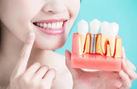 Преимущества зубных имплантов