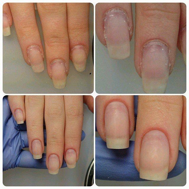 Ногти до и после комбинированного маникюра