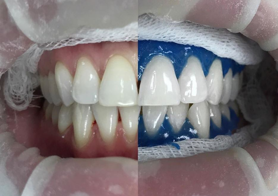 Способы отбелить зубы в домашних условиях без вреда для эмали