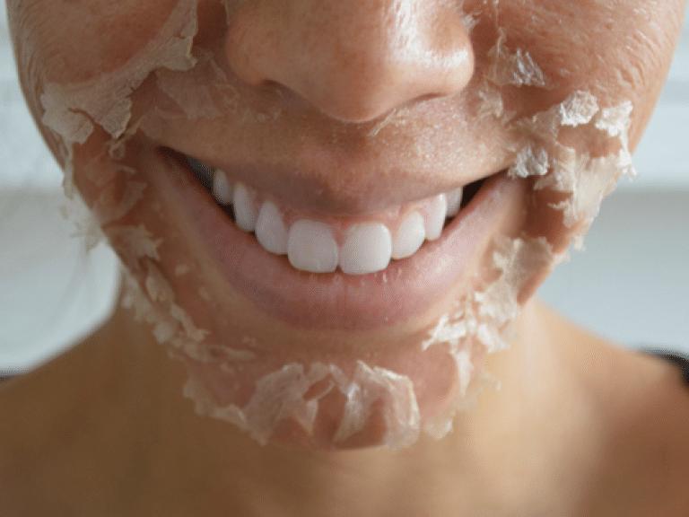 Процедуры красоты, после которых сначала страшно смотреться в зеркало