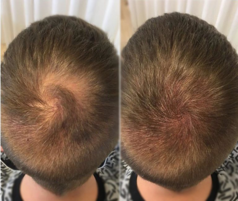 Татуаж головы с имитацией волос замаскирует лысины у мужчин и женщин